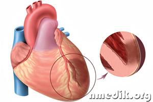 Инфаркт миокарда - симптомы, первая помощь, восстановление