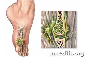 Инфекция костей и суставов температуры тела 37.1 ноющая боль в суставах