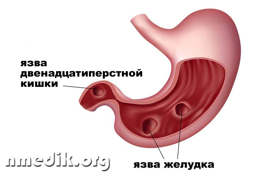 Мази для лечения растяжения связок голеностопного сустава