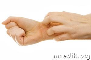 Лечение грыжи позвоночника в домашних условиях отзывы