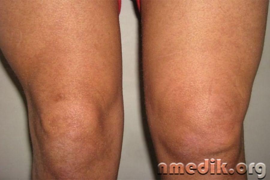 Лечение суставов с отечностью когда болит больной сустав тбс можно ли принимать скипидарную ванну