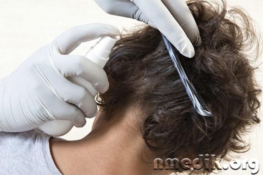 Обработка волос педикулицидным спреем
