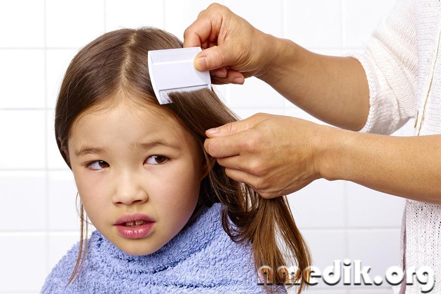 Педикулез у детей. Вычесывание гребнем