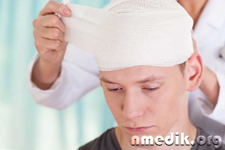 Рекомендации при сотрясении головного мозга