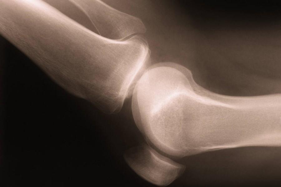 Очищение суставов наложение спиральной повязки на локтевой сустав