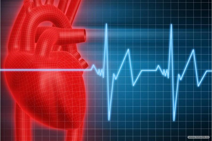 Аритмия сердца – лечение, причины