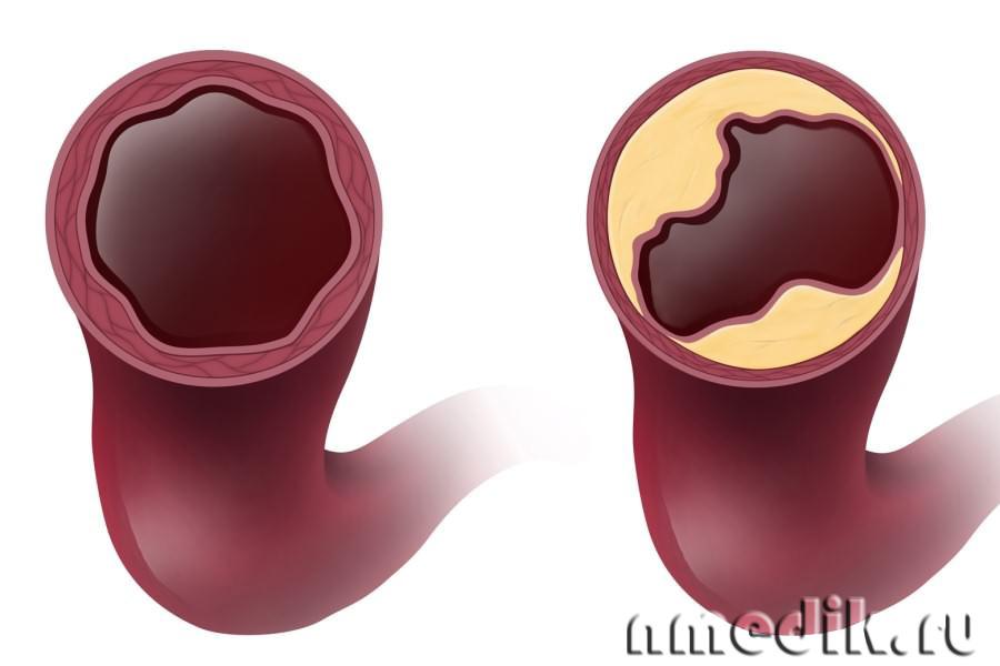 очищение сосудов сердца от холестерина