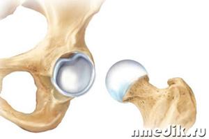 Основные причины коксартроза лизиса тазобедренного сустава кости составляющие локтевой сустав