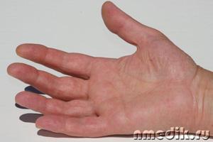 Подагра - симптомы и лечение в домашних условиях