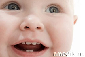 Как обезболить прорезывание зубов ребенку в домашних условиях 64