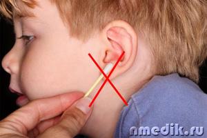 Как сделать промывание ушей в домашних условиях