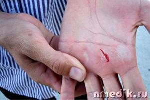 Марганцовка обработка ран, цена 500 грн./кг, купить в Киеве — Prom ...